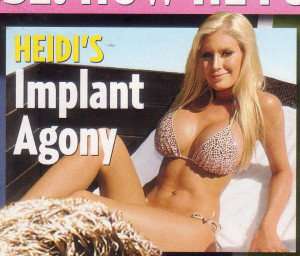 Heidi's Implant Agony1
